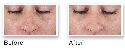 Before after rapid age spot correcting serum